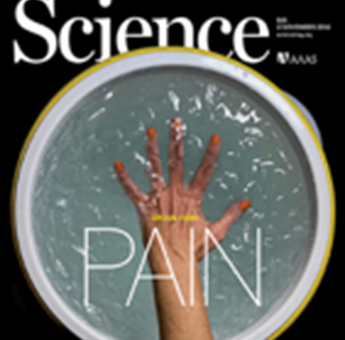 Pain Issue – Science 4 November 2016